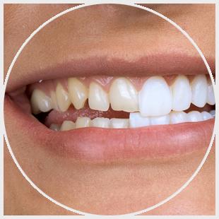 Licówki - zęby
